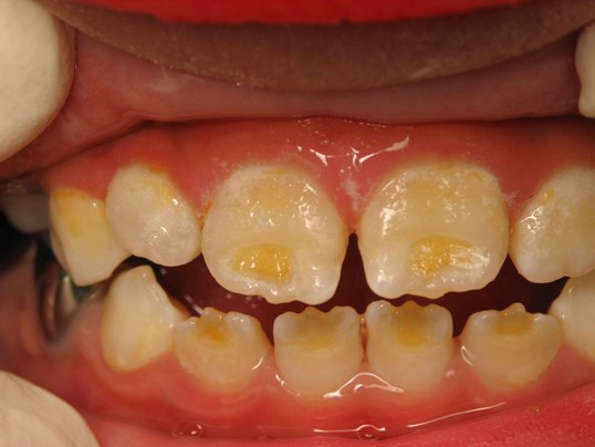 Enamel Hypoplasia Before