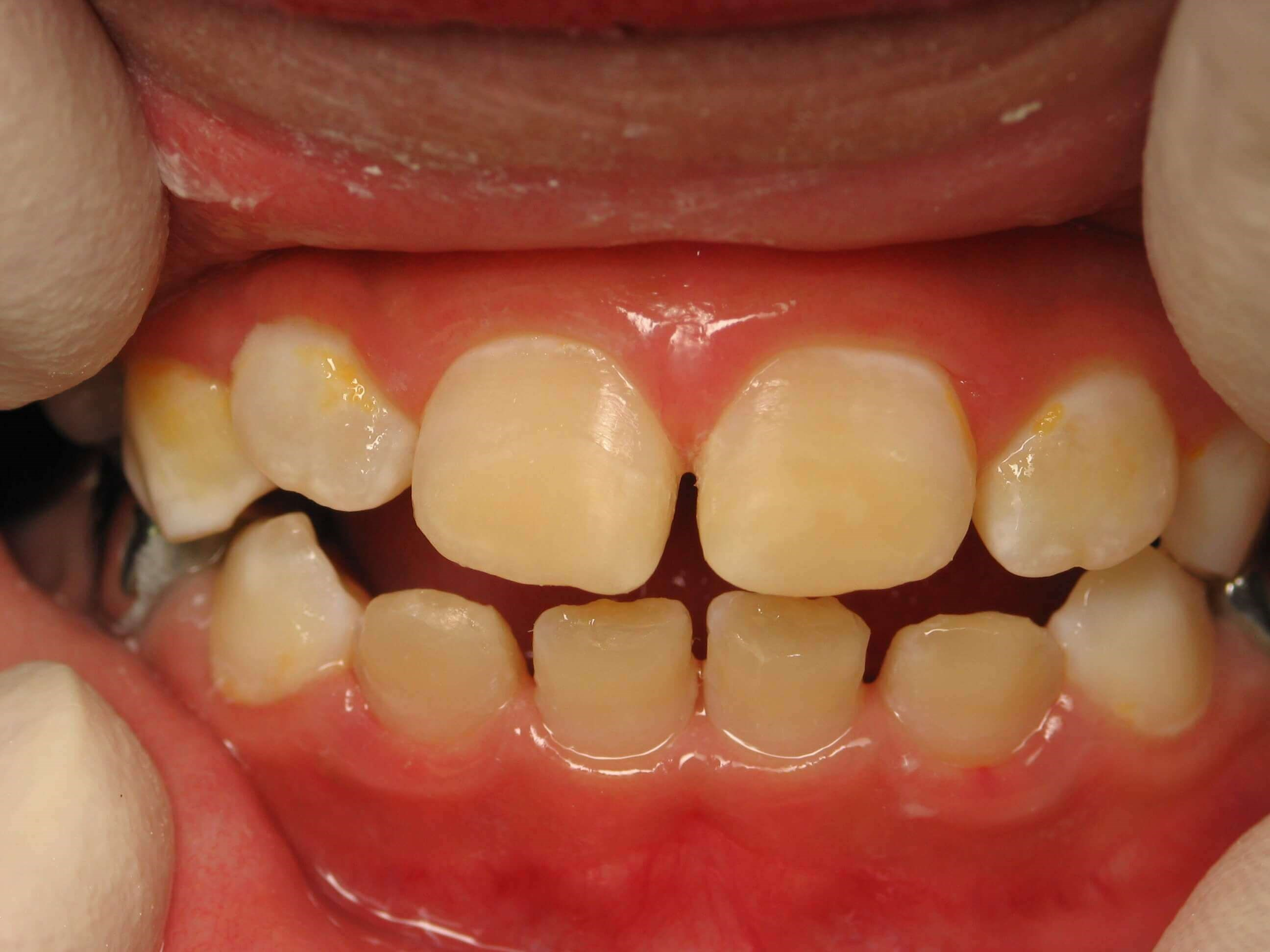 Enamel Hypoplasia After